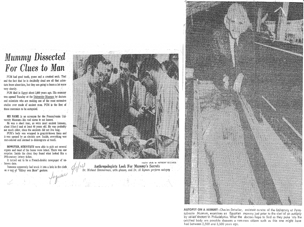 Two different newspaper clippings from 1972-one taken during the procedure (left) and one taken just before (right)