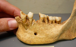 Evidence for pipe smoking evident on the mandibular dentition of an individual from Elmina.