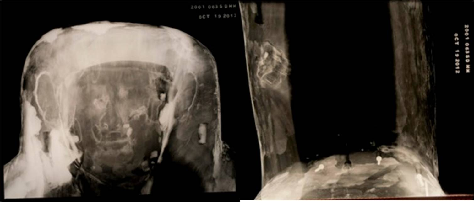 X-radiographs of the head (left) and foot (right) of the sarcophagus. Note the modern screws holding the foot together.