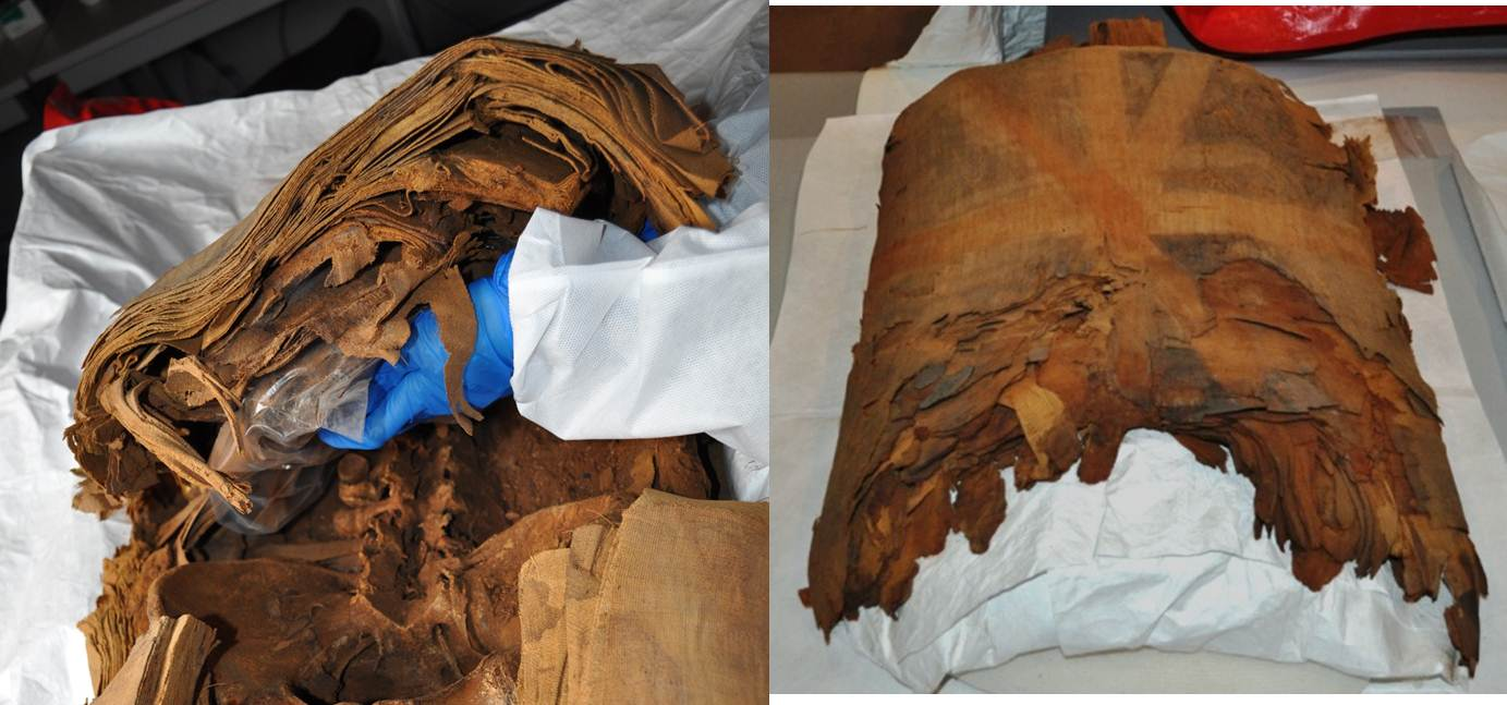 Removing the wrappings (left) and the chest wrappings after removal (right)