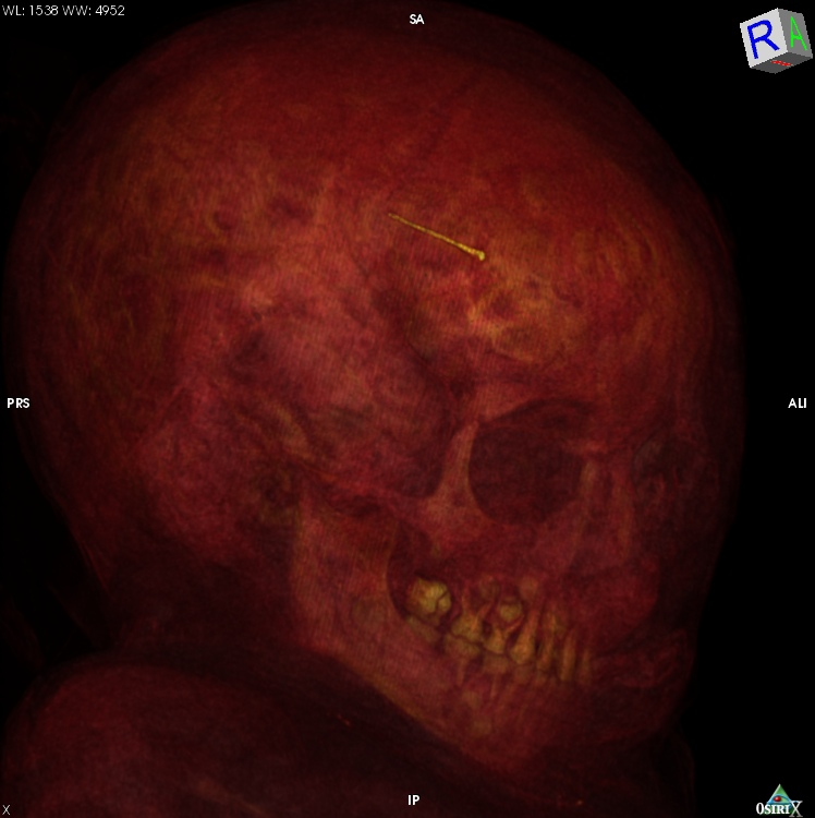 Here is a still from the CT scan showing a detail of Tanus' skull. Based on her teeth it has been estimated that she was right around 5 years old when she died.