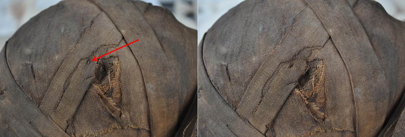 A pin stuck into the bandages on Tanwa's head (left, indicated by red arrow) was removed and the linen was secured to prevent further loss (right, after treatment)