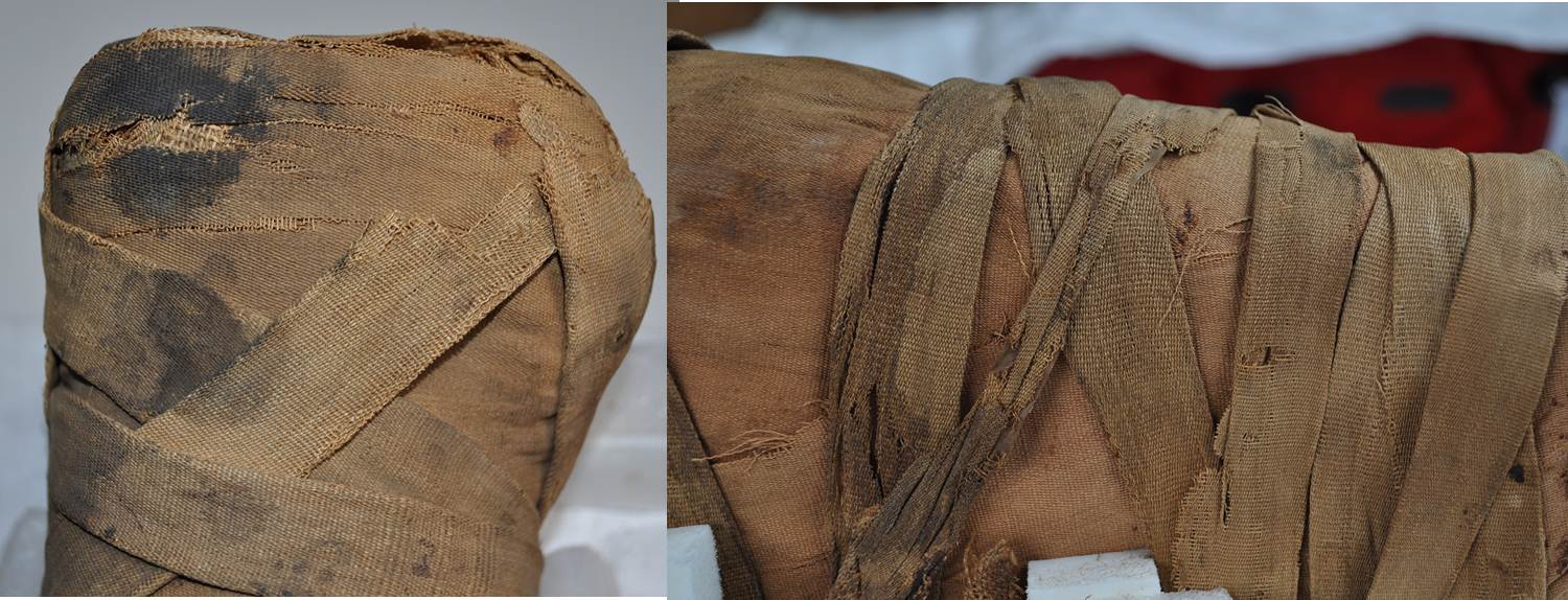 After treatment details of the linen around Tanwa's feet (left) and on her back (right)