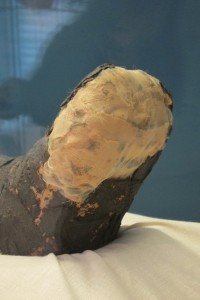 Detail of the Stabiltex encapsulating the feet of the Goucher mummy
