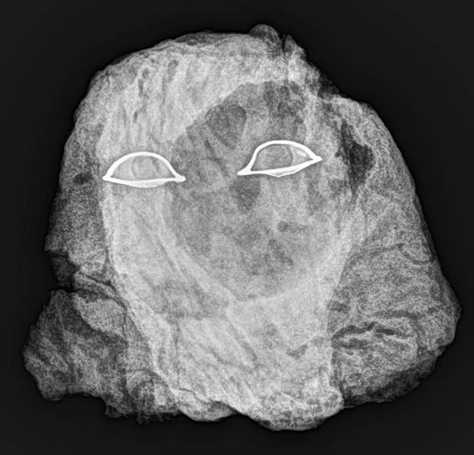 X-ray photograph of E17911