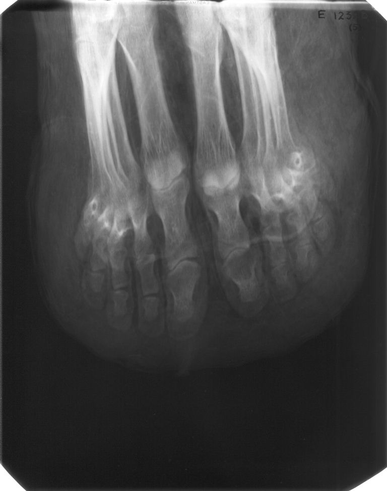 Radiograph of the feet.