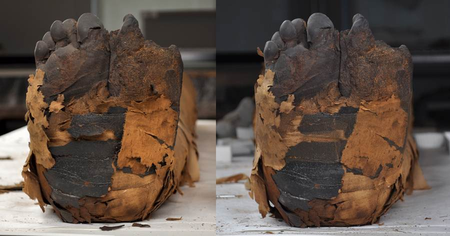 The back of the feet before (left) and after (right) treatment.