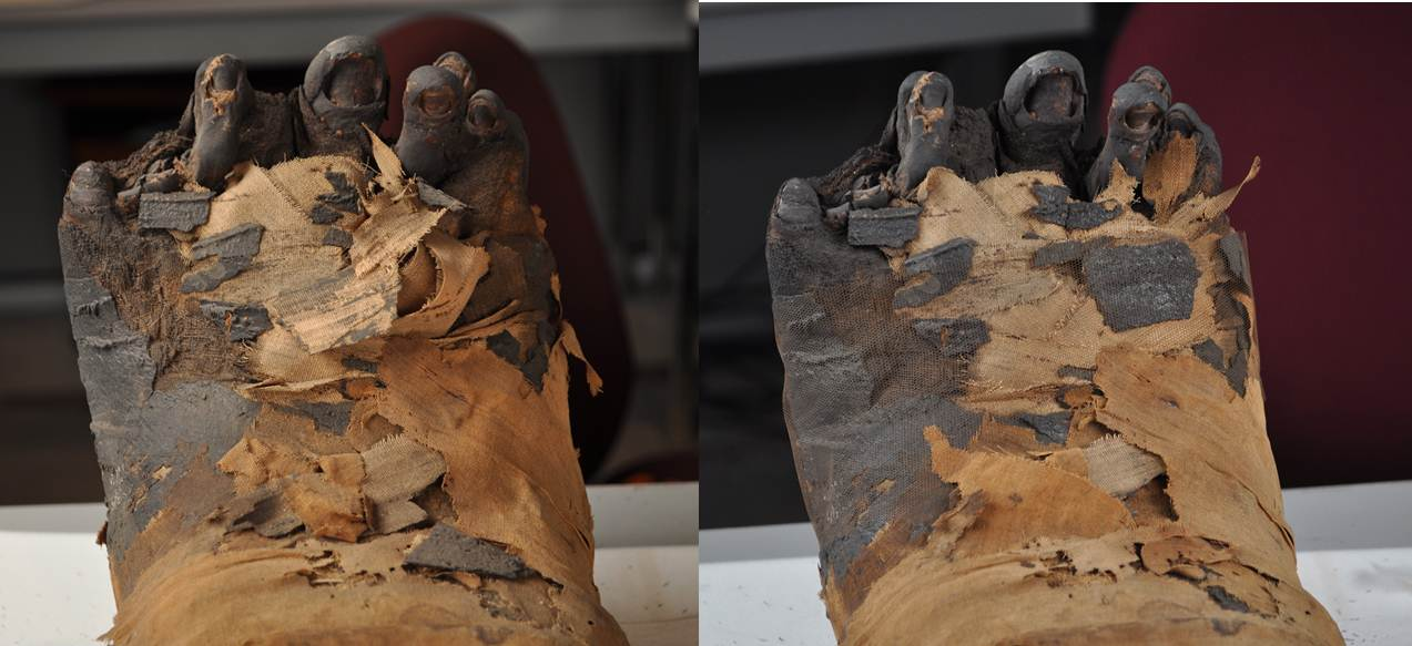 Details of the feet before (left) and after (right) treatment.