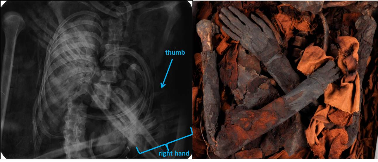 Left image: 1932 radiograph, showing arms crossed and right hand intact. Right image: 2015 photograph, showing damage to right hand.