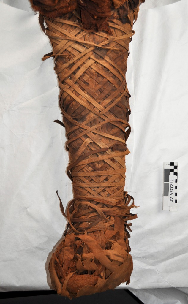 This mummy was elaborate wrapped with narrow strips of linen, creating a rhomboid pattern.
