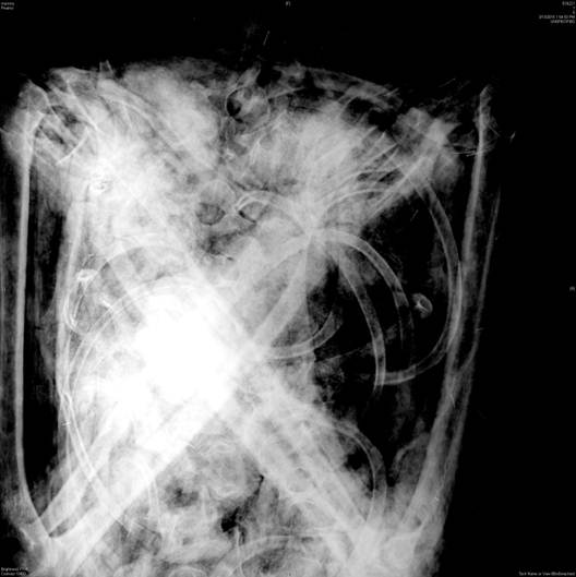 X-ray image of Pinahsi's chest and arms.