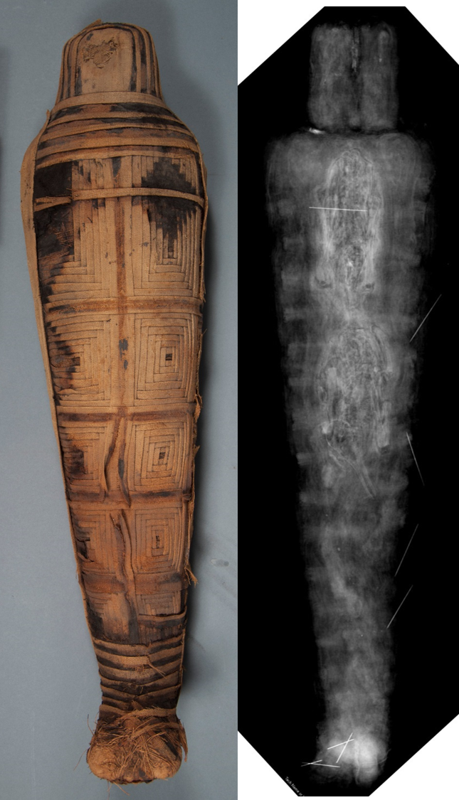 E12441: mummy paired with radiograph