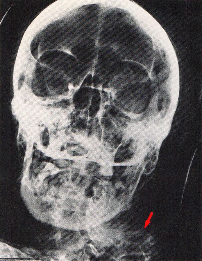 Detail of the 1980 x-radiograph of Djed-Hapi's head. The red arrow shows where his spinal column stops.