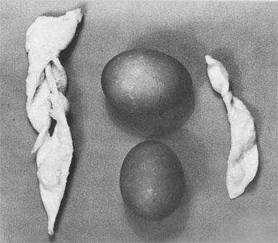 Polish Kruczki and onion-skin dyed eggs by Mrs. Victoria Gizinski
