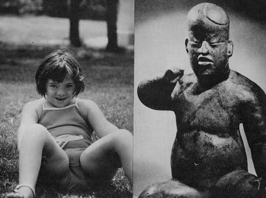 (Left) Twelve-year-old girl with Down's Syndrome. Notice the lack of sexual maturity and the chubby body typical of this affection. (Right) Classic Olmec serpentine figure of a child (private collection).