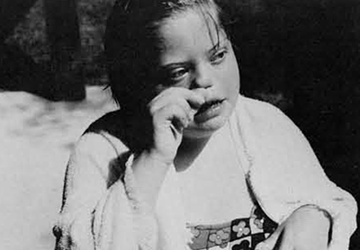 Same girl as in photo above. Together with Down's Syndrome different malformations of the hands may occur. In this case the fingernails are broad, high and claw-like.