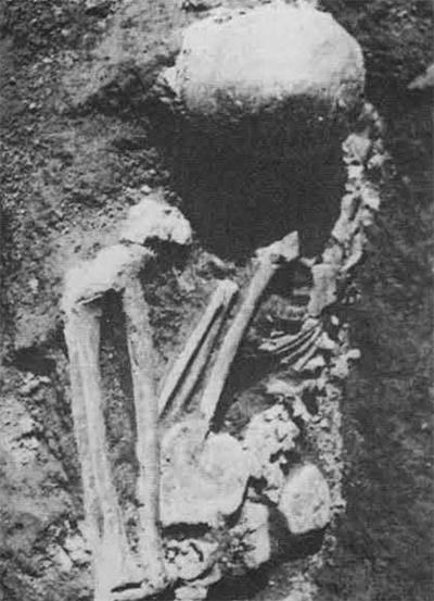 Skeleton No. 3.