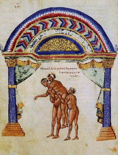 Resetting a Dsilocated Shoulder with the help of assistants. One assistant forces his shoulder into the patient's armpit while the other helper holds the patient aloft.Biblioteca Medica Medicea laurenziana, Florence, Codex Laurentianus 74.7: c. 185v