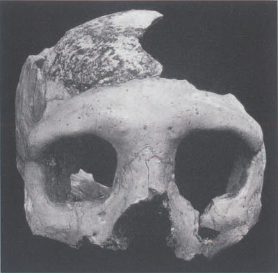 "The Krapina Neandertal specimen called the ""C"" skull (also referred to as Krapina 3). This is the most complete of the skull fragments found at Krapina. The nature fo the extensive bone breakage pattern on all of the skeletal elements has led many researchers to propose that the Krapina peoples were cannibalized. This view is no longer totally accepted since there are other explanations of these types of breaks on bones. Croatian Natural History Museum"