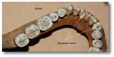 crania_teeth