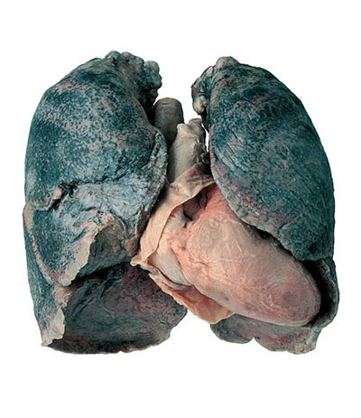 Photo of lungs
