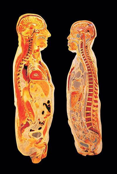 Photo of bodies