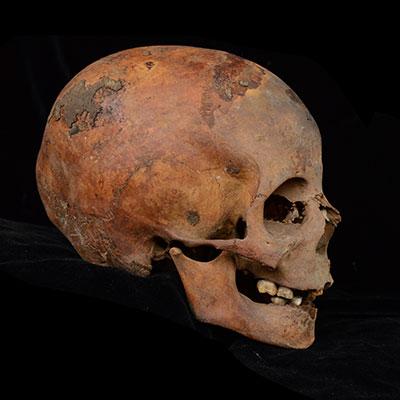 Photo of Skull