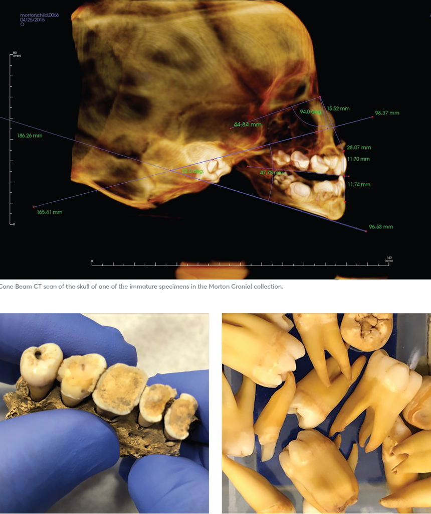 An xray of a skull and an assortment of teeth